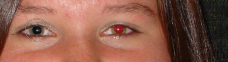 dxo optics 11 red eyes 2 - Cách khử mắt đỏ trong DxO OpticsPro 11